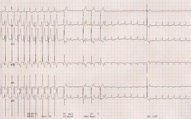 cardiologie-ecg